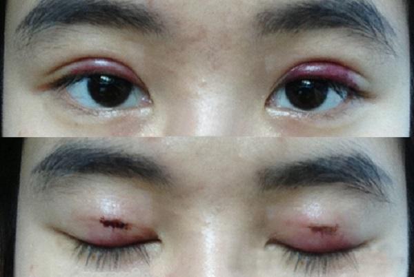 Bác sĩ cắt mí mắt tại TP. HCM ở đâu tốt nhất?