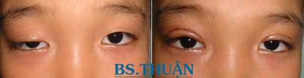 hình ảnh trước và sau phẫu thuật thẩm mỹ sụp mí mắt