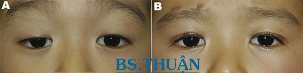 hình ảnh trước và sau phẫu thuật thẩm mỹ sụp mí mắt 1