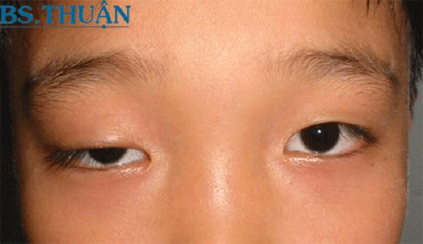 Có khá nhiều lý do dẫn đến tình trạng sụp mí mắt