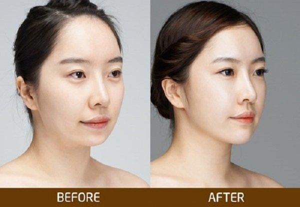 Trước và sau phẫu thuật độn cằm