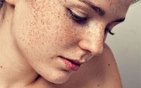 Bị nám da là bị gì và điều tri thế nào