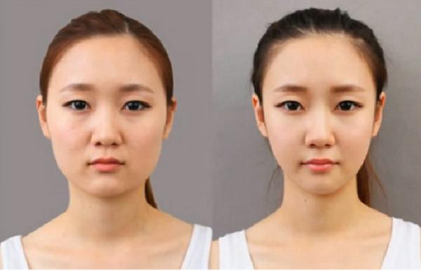 Sự khác biệt trước và sau khi nâng cơ Hifu