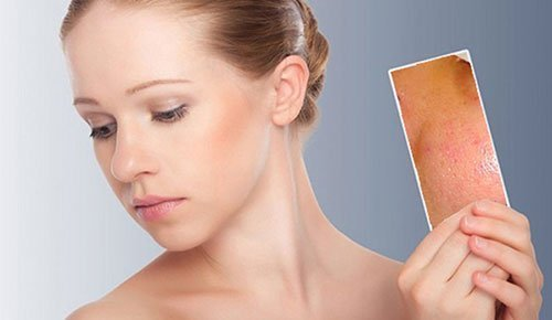 Kem trị mụn tinh chất ốc sên giúp xóa bỏ mụn hiệu quả