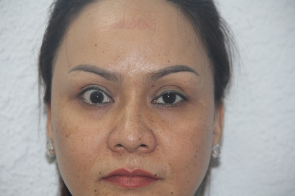Bác sĩ Thuận - Bác sĩ cắt mí mắt tốt nhất tại TP. HCM