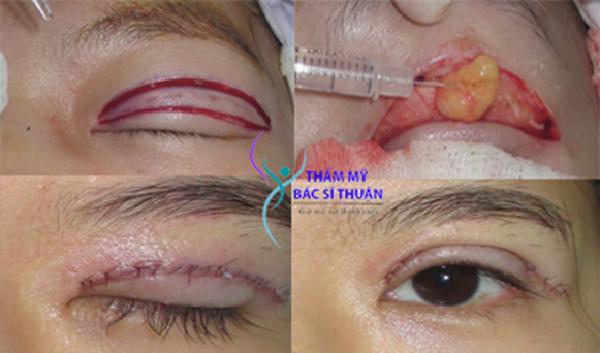 Quy trình cắt mí mắt tại địa chỉ cắt mắt hai mí uy tín