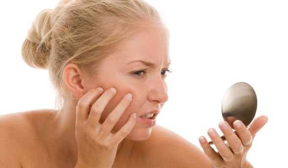 Da bị mụn liệu có sử dụng kem chống nắng được không?