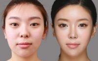 Giải pháp khắc phục tình trạng mũi hếch, ngắn hiệu quả