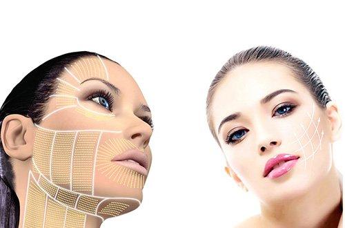Trẻ hóa da bằng nâng cơ hifu