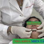 Niềng răng không mắc cài thẩm mỹ cao