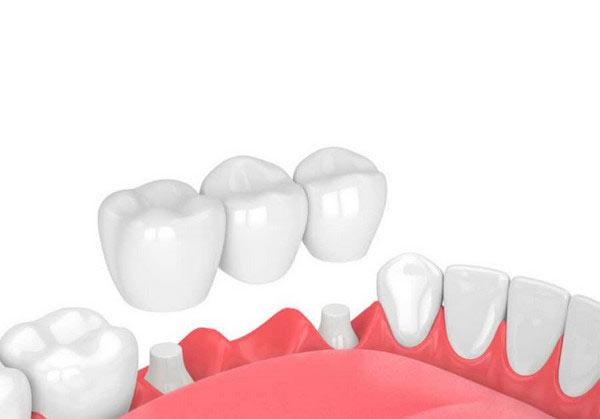 Phương án cầu răng sứ