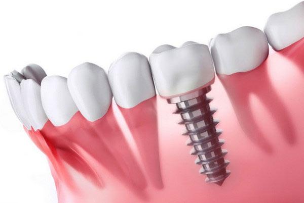 Trồng răng sứ không có chân răng bằng phương án cấy ghép Implant