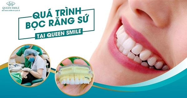 địa chỉ uy tín bọc răng sứ tại tphcm Queen Smile