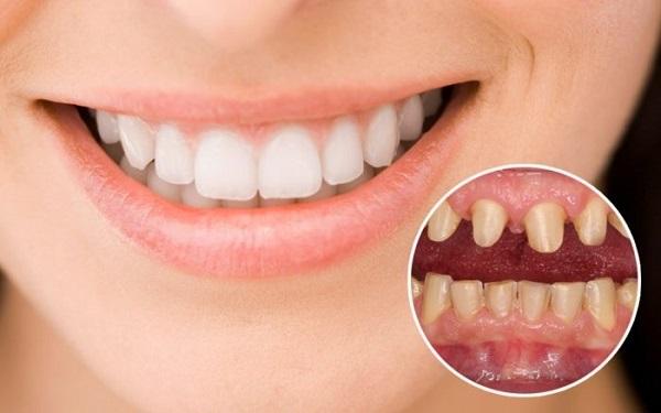 địa chỉ bọc răng sứ uy tín tại tphcm 2021