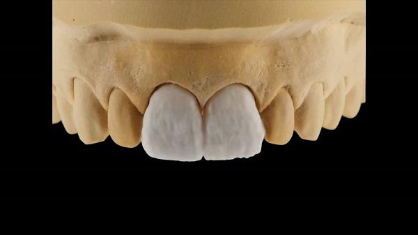 Bọc sứ 4 răng cửa là phương pháp mới