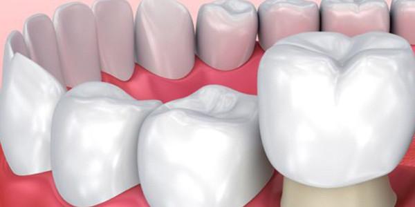 Giá răng sứ hà nội