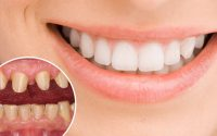 Mức giá răng sứ hà nội là bao nhiêu hiện nay?