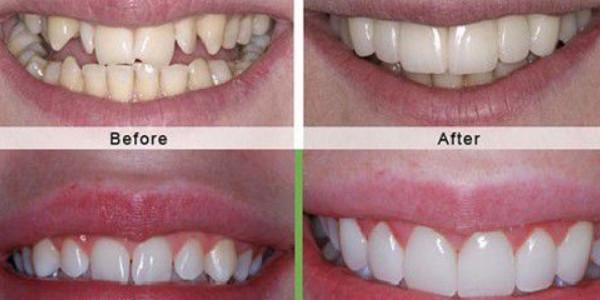 Quy trình bọc răng sứ không đau, an toàn, chất lượng đảm bảo
