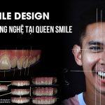 Cần lưu ý những gì khi bọc răng sứ 4 răng cửa | Queen Smile