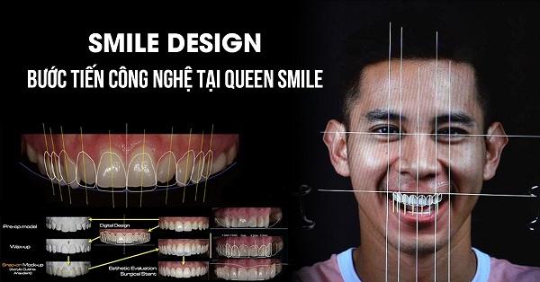 Bọc sứ 4 răng cửa tại Queen Smile