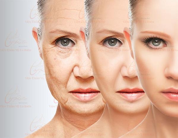 làn da được cải thiện khi dùng công nghệ hifu