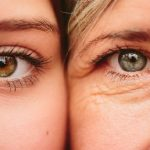 Xóa nếp nhăn quanh mắt bằng công nghệ Hifu có an toàn hay không?