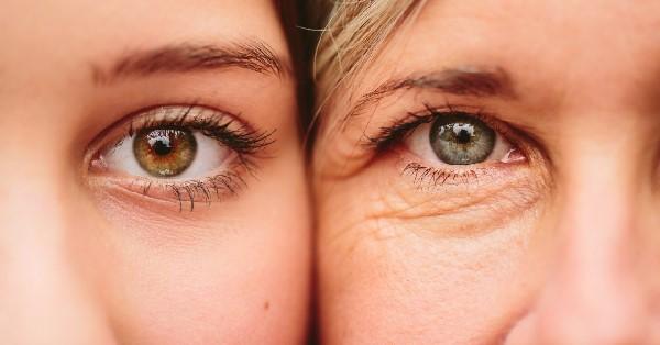 Nếp nhăn mắt dấu hiện lão hóa