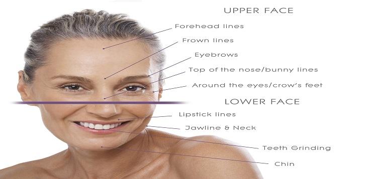 Vùng tác dụng của botox